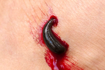 DON'T Suck it Up: How to Properly Remove Leeches
