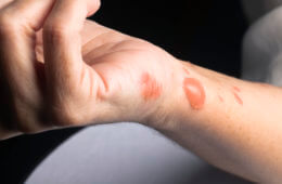 Hot Spot Healing: How to Treat Minor Burns