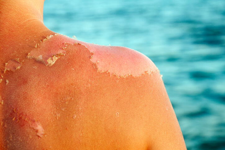Hot Spot Healing: How to Treat Minor Burns - American