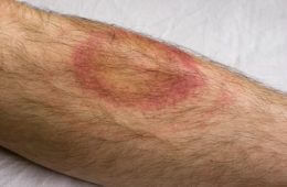 Bugout Time: Infections from Mosquito, Tick and Flea Bites Increasing