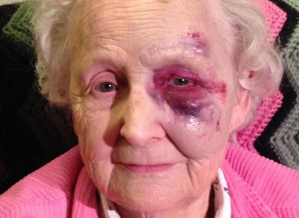An elderly woman with bruises on her eye as a result of a mugging crime